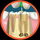 รักษารากฟัน เชียงใหม่