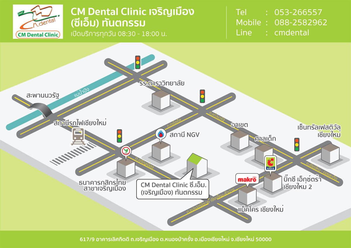 แผนที่คลินิกจัดฟันเชียงใหม่ CM Dental Clinic