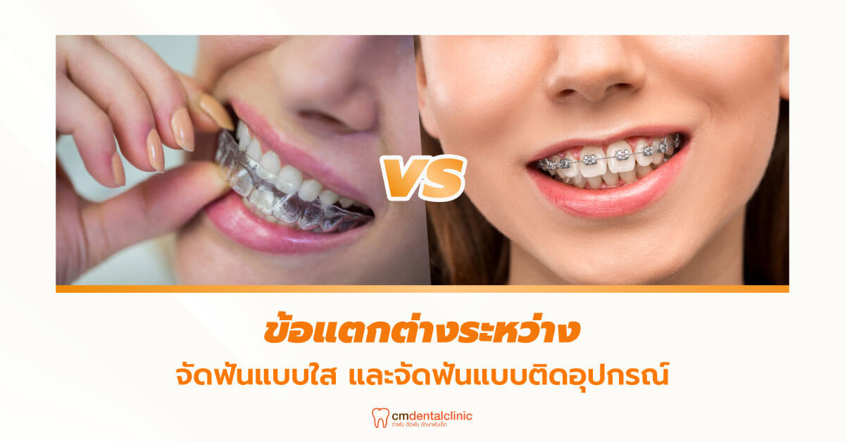 ข้อแตกต่างระหว่างจัดฟันแบบใส และจัดฟันแบบติดอุปกรณ์