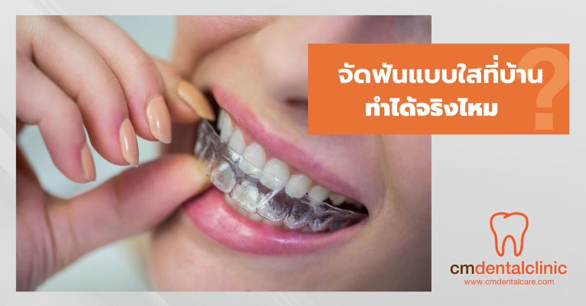 จัดฟันแบบใสทำได้ที่บ้านจริงไหม